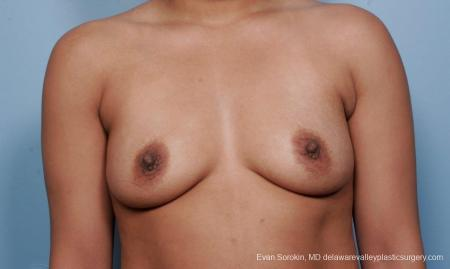 Philadelphia Breast Augmentation 9387 - Before Image 1