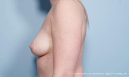 Philadelphia Breast Augmentation 8658 - Before and After Image 5