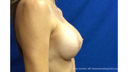 Philadelphia Breast Augmentation 13180 -  After Image 3
