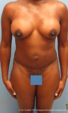 Philadelphia Mommy Makeover 9428 - After Image