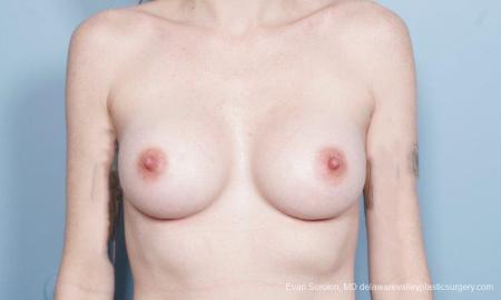 Philadelphia Breast Augmentation 8649 -  After Image 1