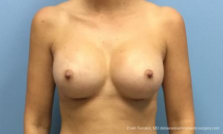 Philadelphia Breast Augmentation 12514 -  After Image 1