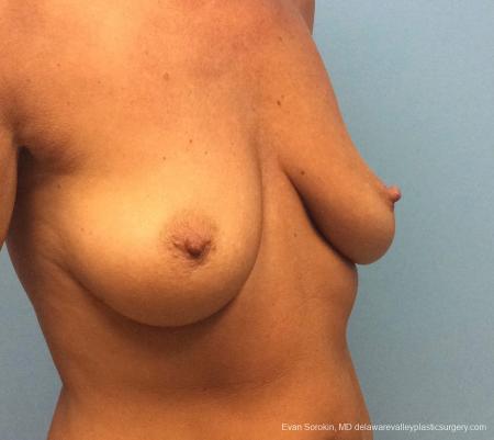 Philadelphia Breast Lift and Augmentation 13068 - Before Image 2