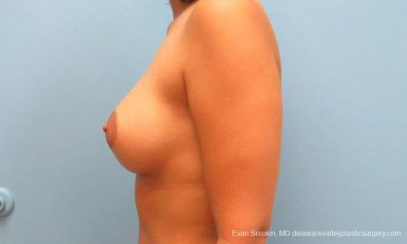 Philadelphia Breast Augmentation 9382 -  After Image 3