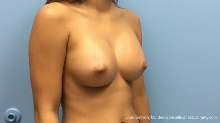 Philadelphia Breast Augmentation 13183 -  After Image 2