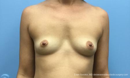 Philadelphia Breast Augmentation 12519 - Before Image 1
