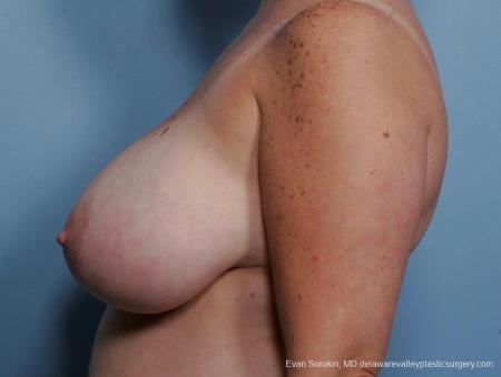 Philadelphia Breast Reduction 8703 - Before Image 4