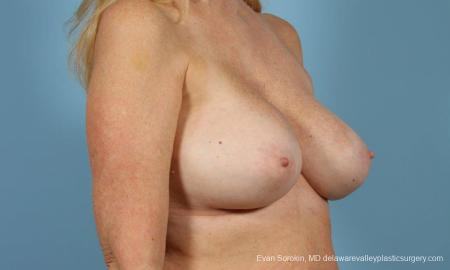 Philadelphia Breast Augmentation 9457 -  After Image 4