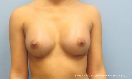 Philadelphia Breast Augmentation 9341 -  After Image 1