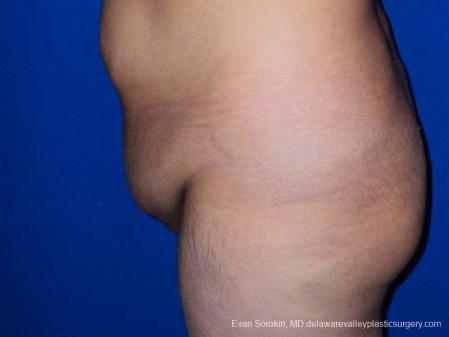 Philadelphia Abdominoplasty 9471 - Before and After Image 5