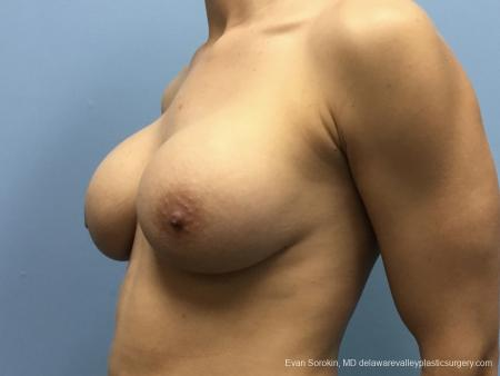 Breast Lift And Augmentation: Patient 42 - Before and After Image 3
