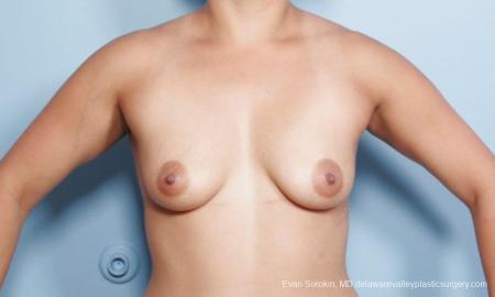 Philadelphia Breast Augmentation 9297 - Before Image 1