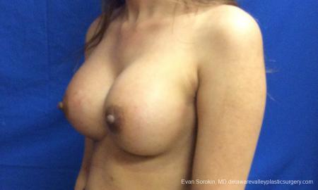 Philadelphia Breast Augmentation 12515 -  After Image 3