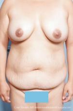 Philadelphia Mommy Makeover 8676 - Before Image