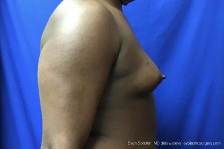 Top Surgery - Male To Female: Patient 2 - Before Image 2