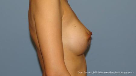 Philadelphia Breast Augmentation 9291 -  After Image 3