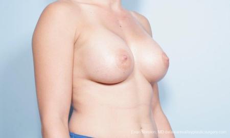 Philadelphia Breast Augmentation 9296 -  After Image 4