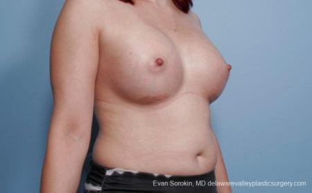 Breast Augmentation: Patient 54 - After Image 2
