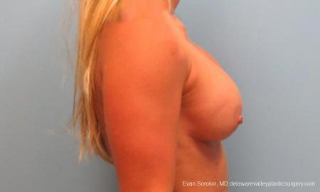 Philadelphia Breast Lift and Augmentation 9370 - Before and After Image 5