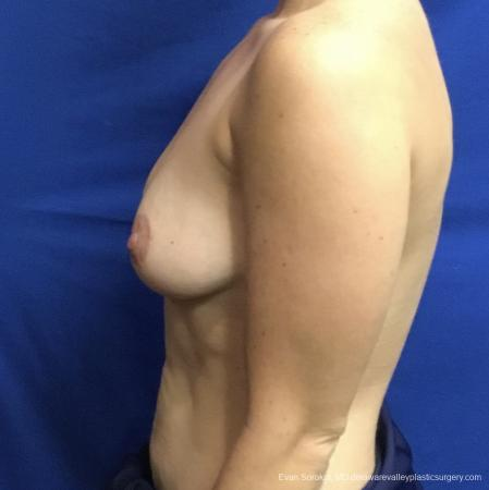 Breast Lift And Augmentation: Patient 3 - Before and After Image 5