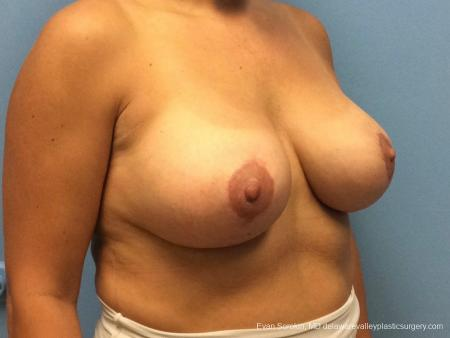Philadelphia Breast Lift and Augmentation 13070 -  After Image 2