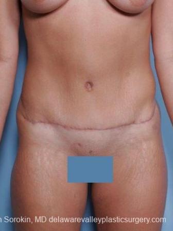 Philadelphia Abdominoplasty 8698 - After Image