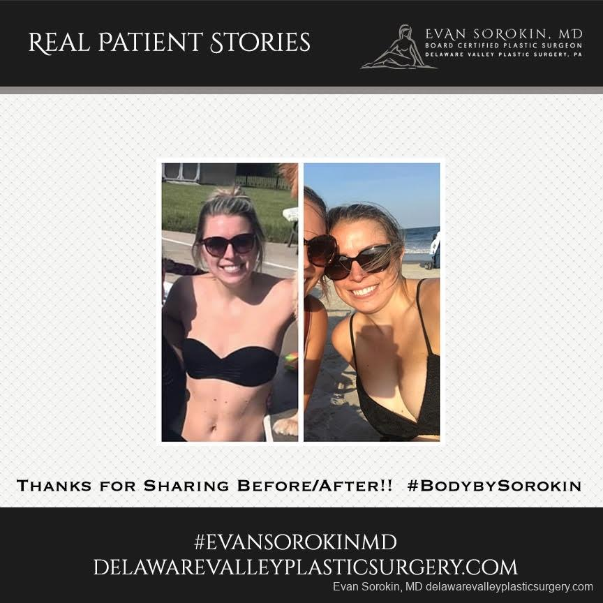 Real Patient Stories: Patient 24 - Before and After Image 1