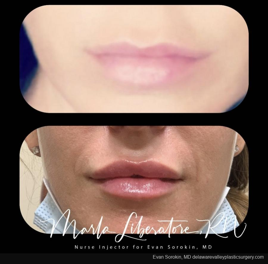 Lip Filler: Patient 9 - Before and After Image