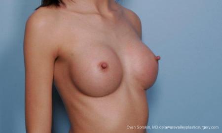 Philadelphia Breast Augmentation 9377 -  After Image 2