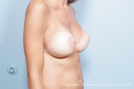 Philadelphia Breast Lift and Augmentation 8694 -  After Image 2