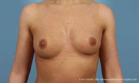 Philadelphia Breast Augmentation 8643 - Before Image