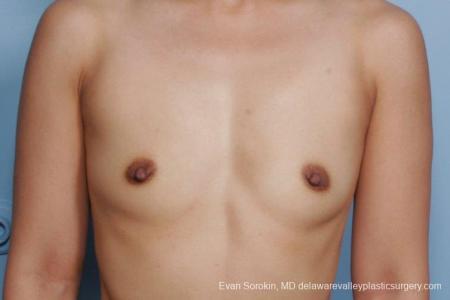 Philadelphia Breast Augmentation 8661 - Before Image 1