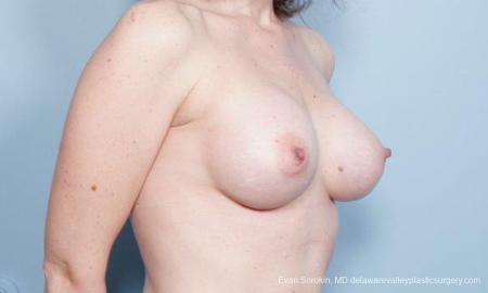 Philadelphia Breast Augmentation 9302 -  After Image 2