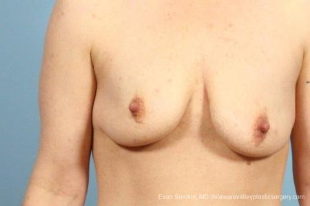 Philadelphia Breast Lift and Augmentation 8687 - Before Image 1
