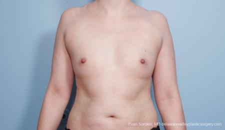 Breast Augmentation: Patient 54 - Before Image 1