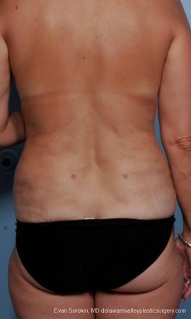 Philadelphia Liposuction 9374 - After Image