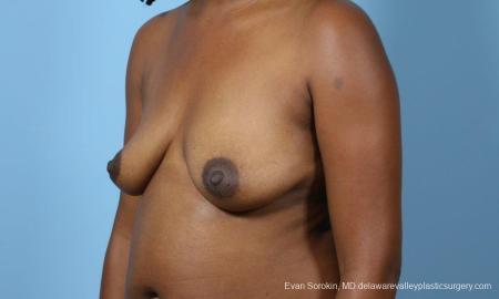 Philadelphia Breast Augmentation 9173 - Before Image 4
