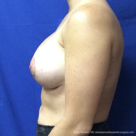 Breast Lift And Augmentation: Patient 3 - After Image 5