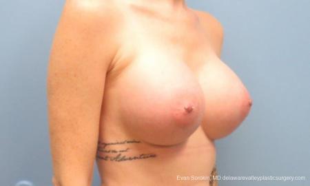 Philadelphia Breast Augmentation 9371 -  After Image 2