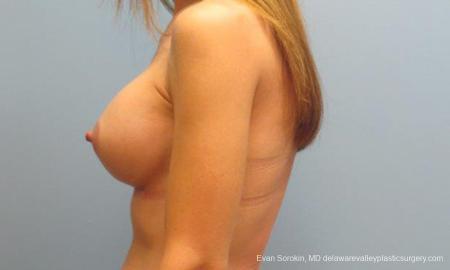 Philadelphia Breast Augmentation 9368 -  After Image 5