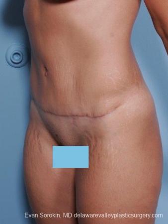 Philadelphia Abdominoplasty 8698 -  After Image 2
