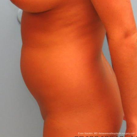 Philadelphia Liposuction 9483 - Before Image 3