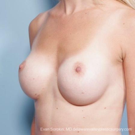 Philadelphia Breast Augmentation 8652 - Before Image 3