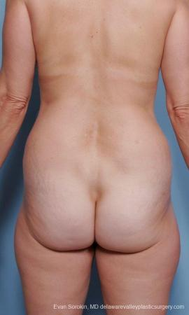Philadelphia Liposuction 9374 - Before Image