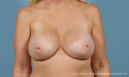 Philadelphia Breast Augmentation 9457 - After Image