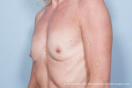 Philadelphia Breast Augmentation 9415 - Before Image 4