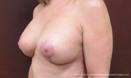 Philadelphia Breast Lift and Augmentation 9598 -  After Image 4