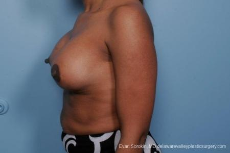 Philadelphia Breast Lift and Augmentation 8689 -  After Image 5