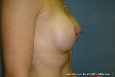 Breast Augmentation 8667 -  After Image 3