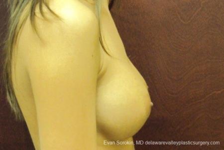 Philadelphia Breast Augmentation 8668 -  After Image 4